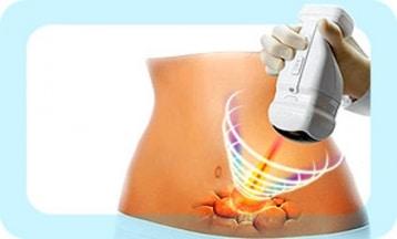 Hifu Lisonic ultrasons focalisés corps